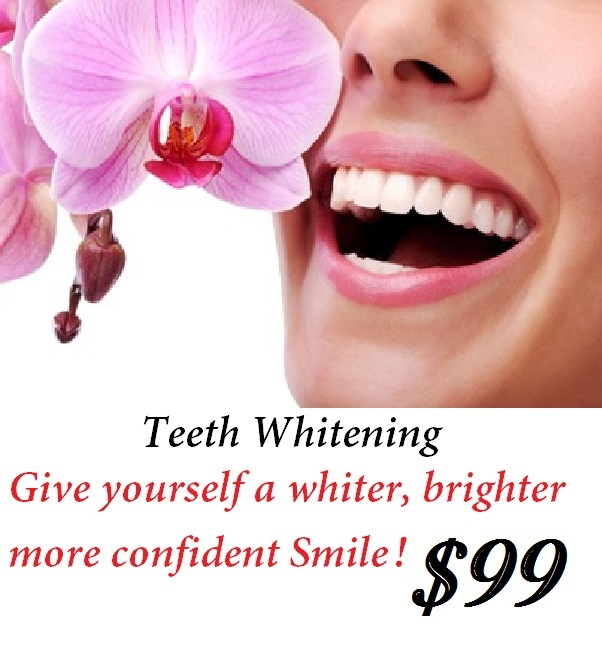 Teeth whitening add